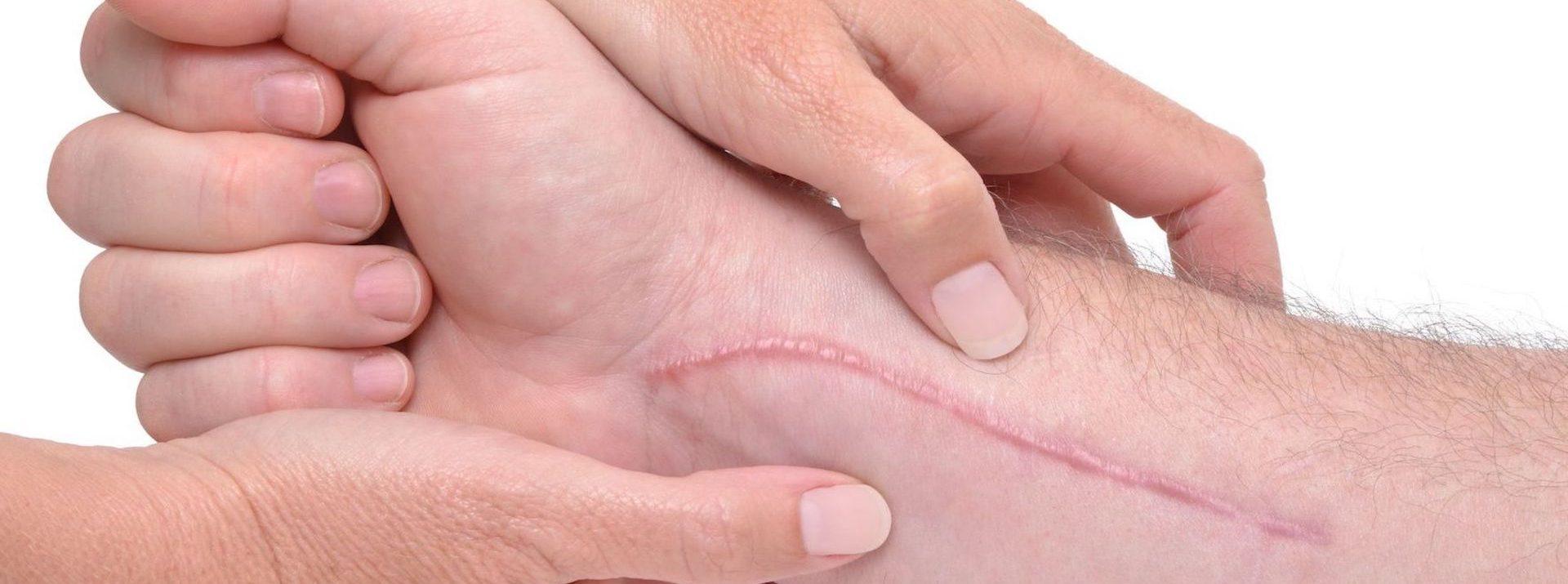 Litteken littekenmassage littekentherapie littekenbehandeling huidtherapie Huidtotaal Arnhem