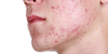 acne Acnebehandeling acnetherapie huidtherapie Arnhem Doetinchem Huidtotaal