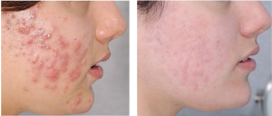 acne acnebehandeling acnetherapie