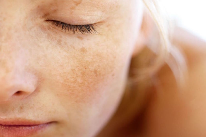 Pigmentvlekken gezicht peeling