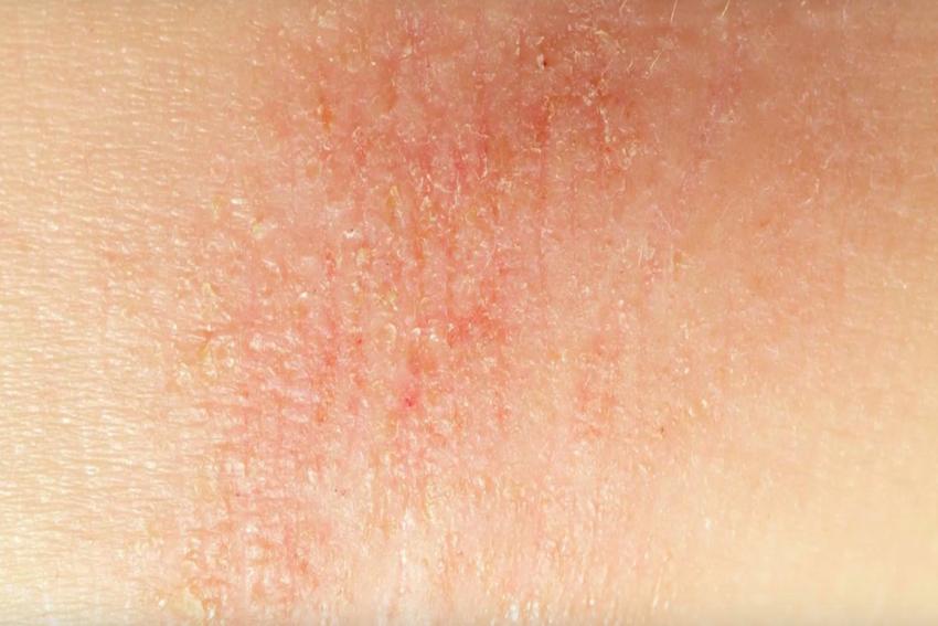 jeukende droge huid