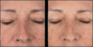 DermaQuest peeling huidverjonging
