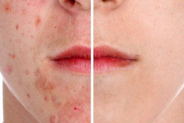 Acne acnebehandeling huidtherapie Huidtotaal Arnhem