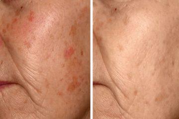 Pigment pigmentbehandeling huidtherapie Huidtotaal Arnhem